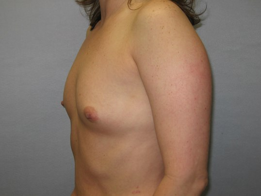Cary Woman with breast augment Before