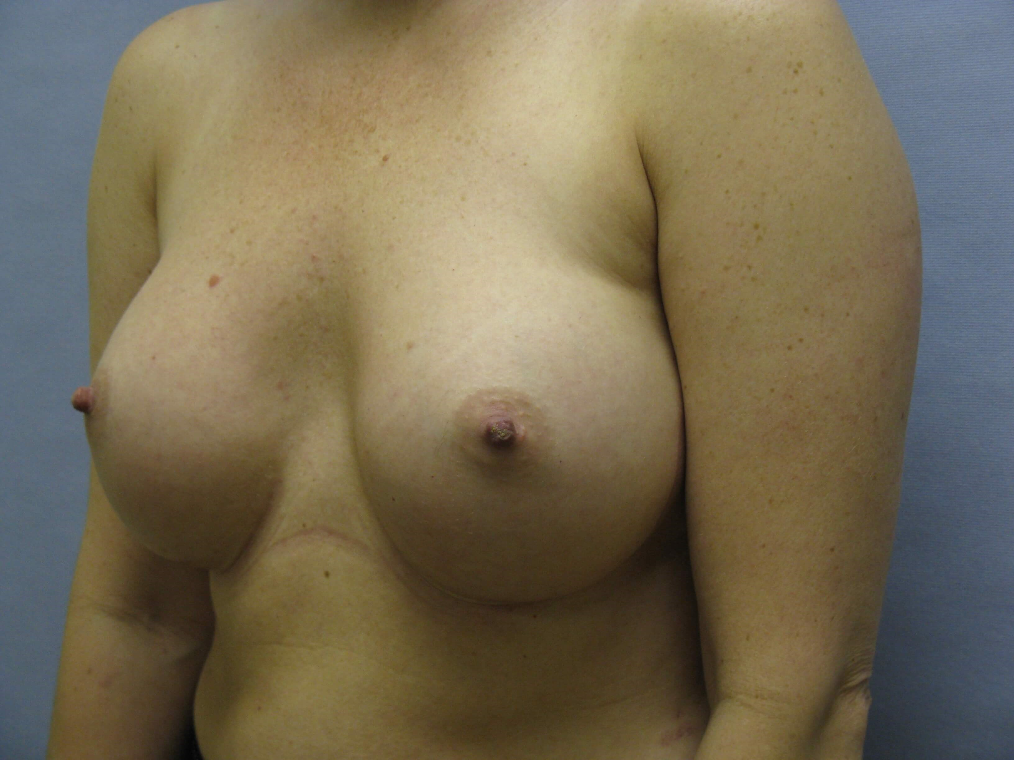 Cary Woman with breast augment After