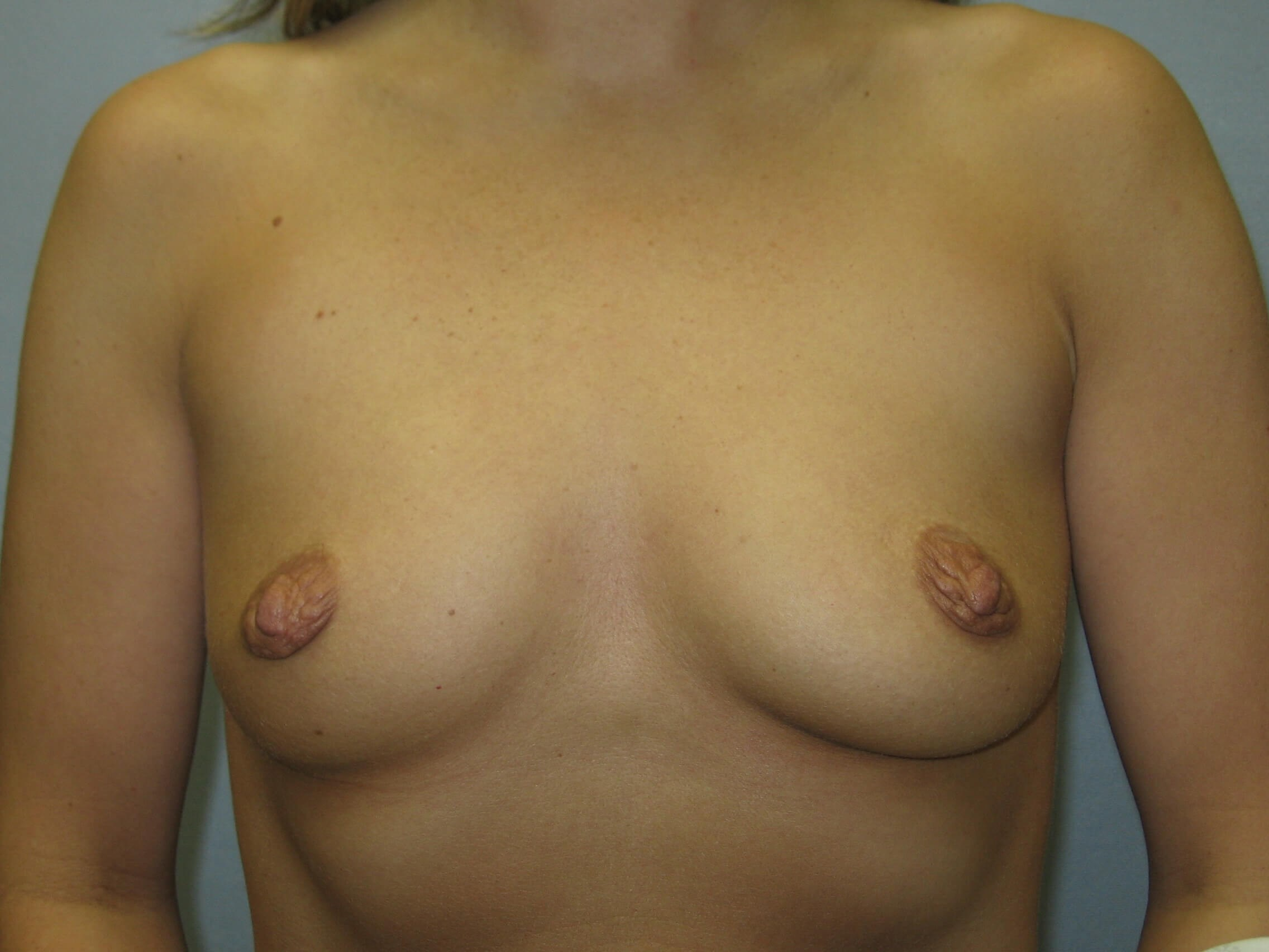 NC woman loves her augment Before