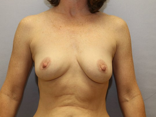 Raleigh woman with implants Before