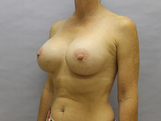 Raleigh woman with implants After