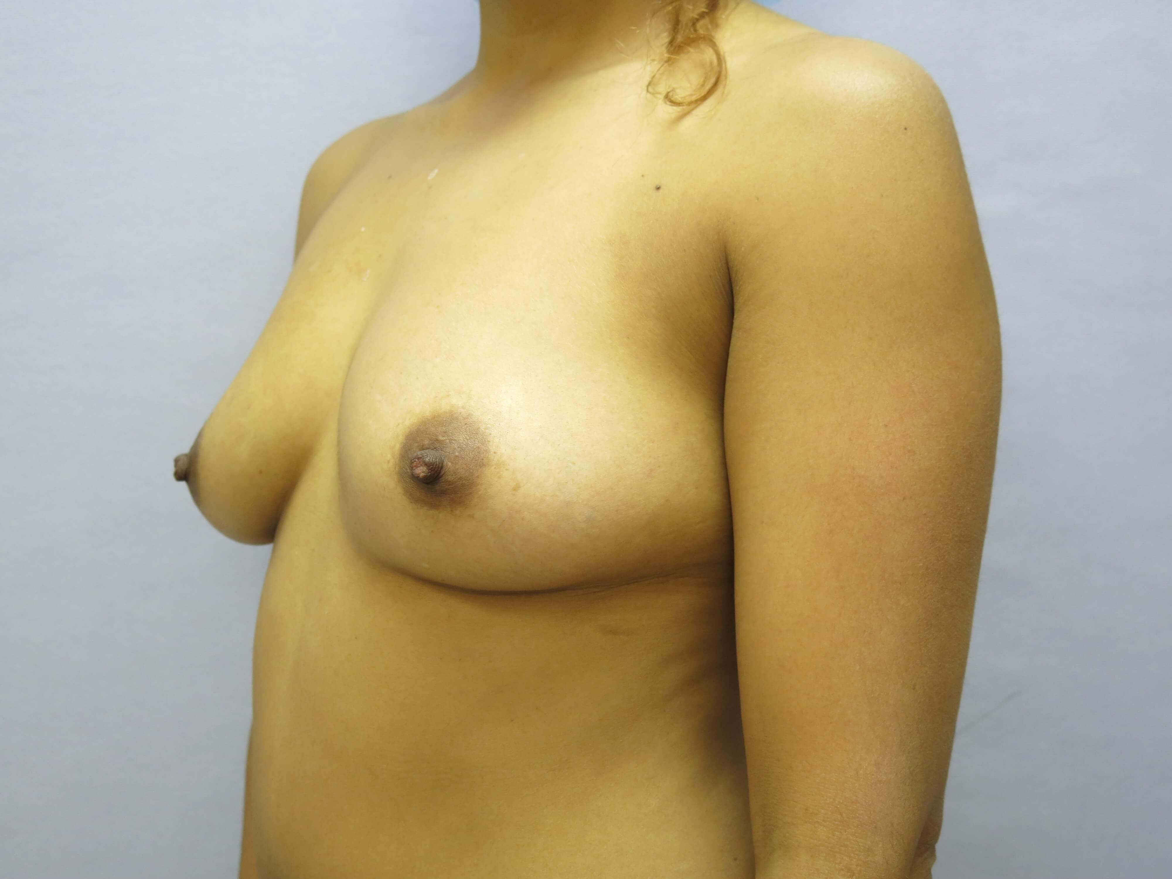Raleigh Breast augmentation Before