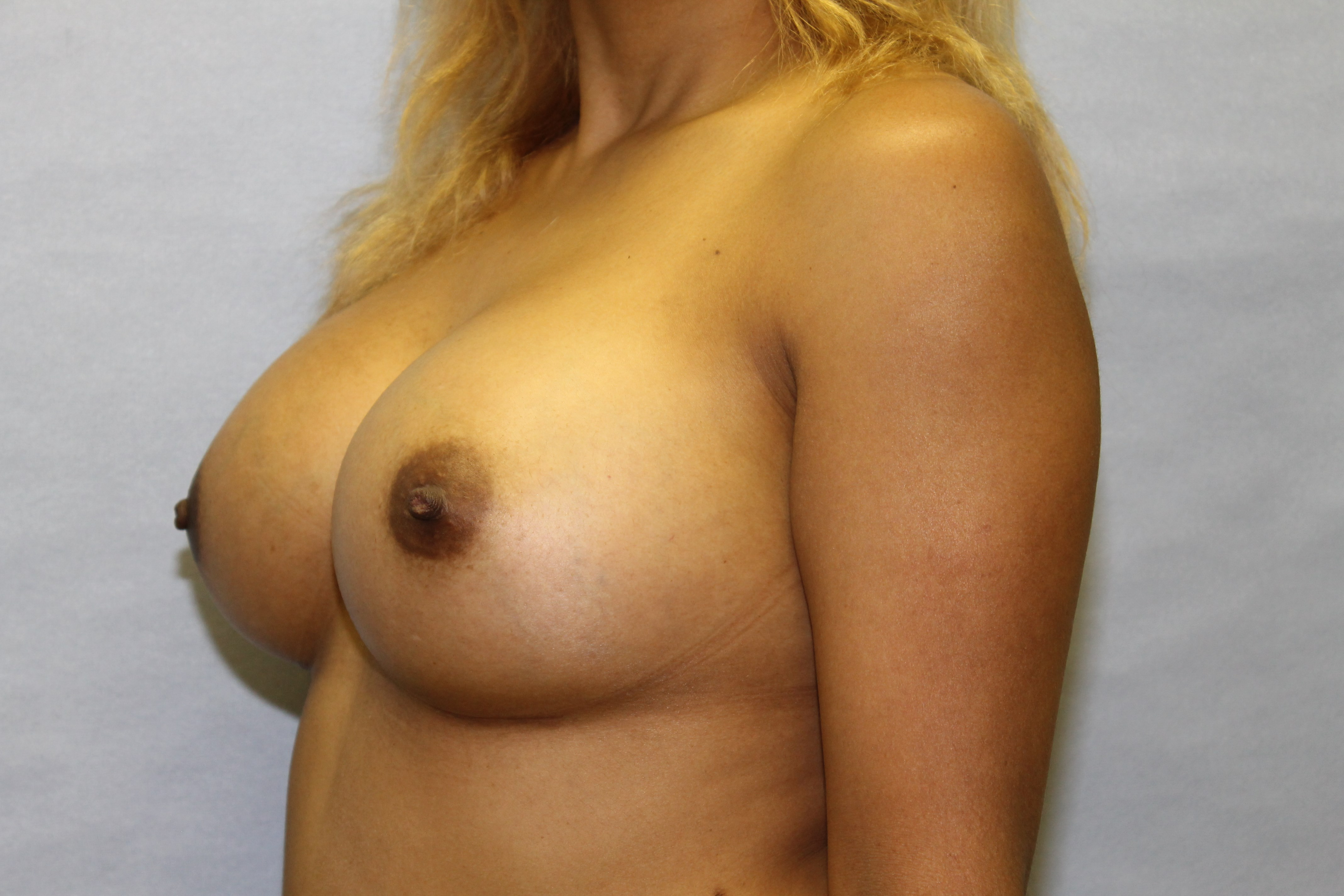 Raleigh Breast augmentation After