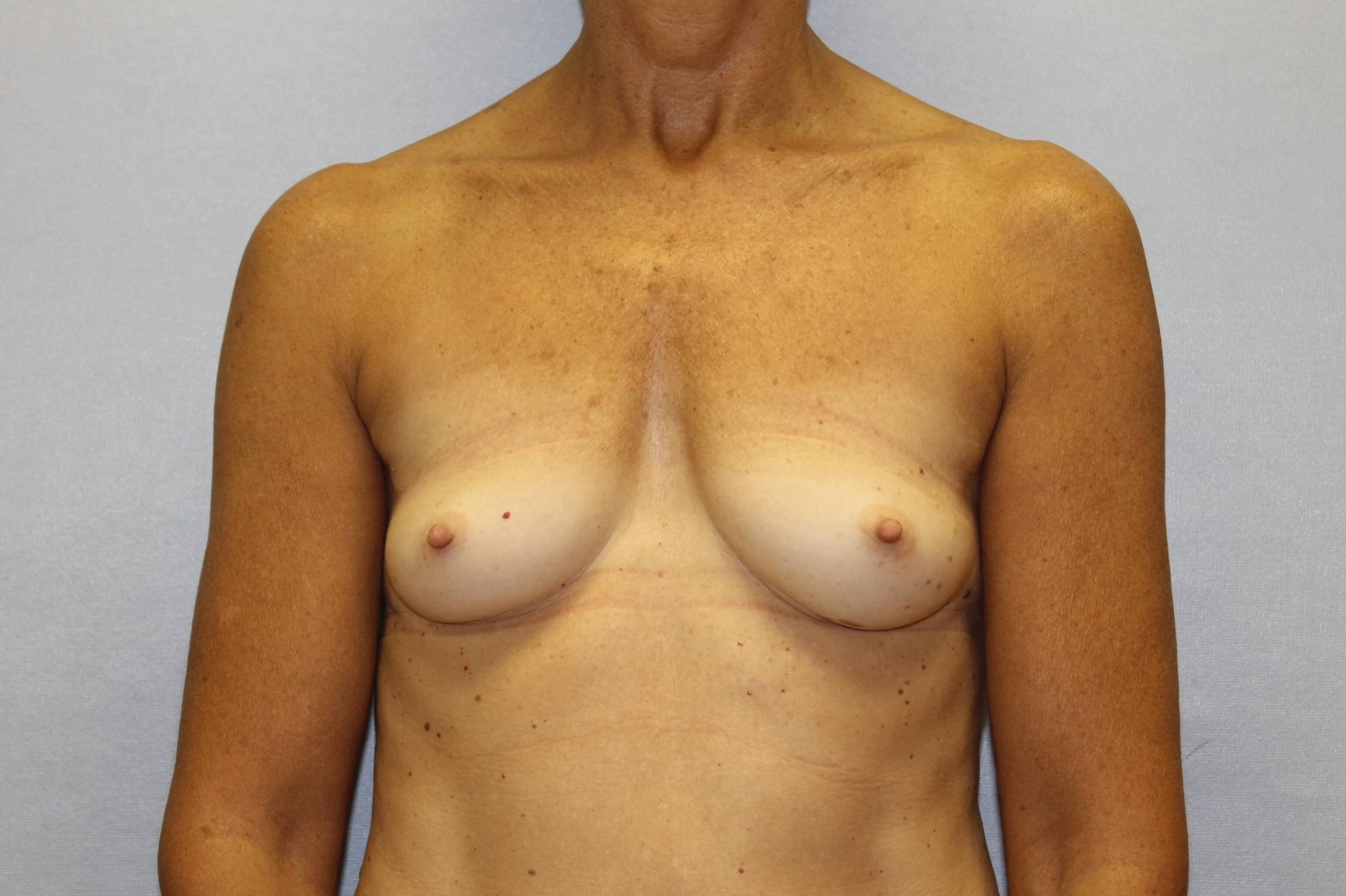 Middle aged woman has augment Before