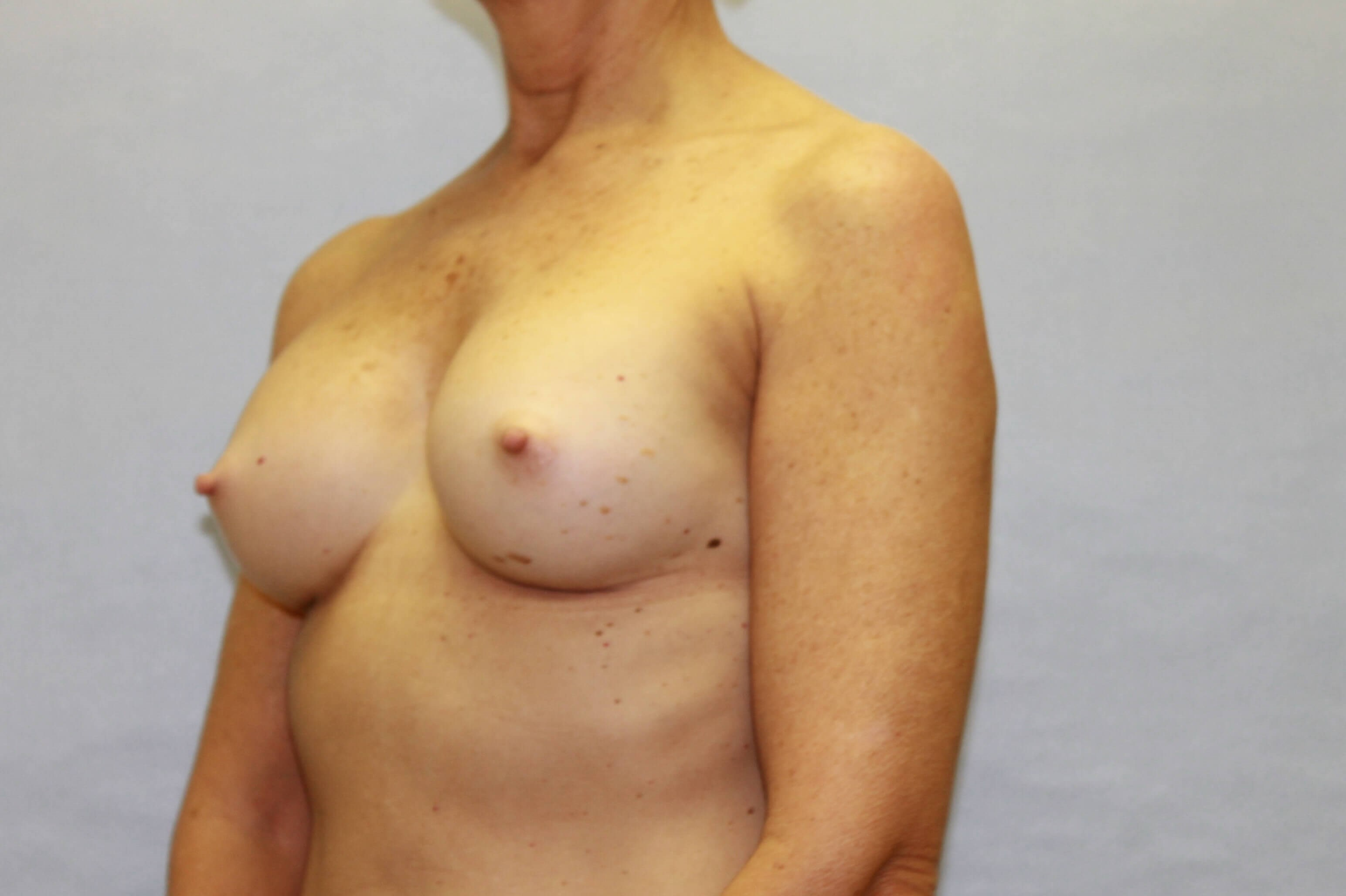 Middle aged woman has augment After