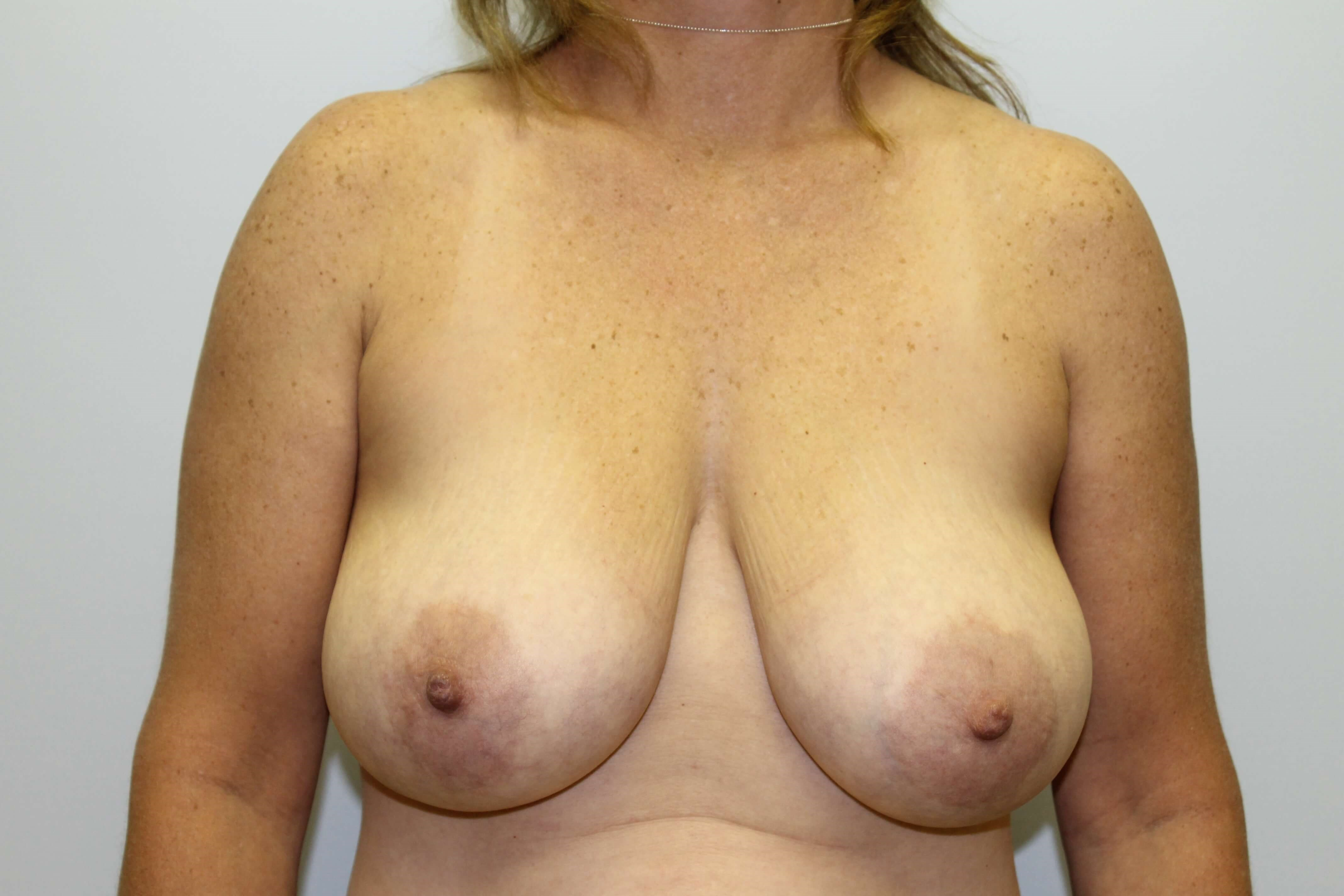 Wake Forest mom with reduction Before