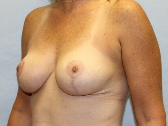 Wake Forest mom with reduction After