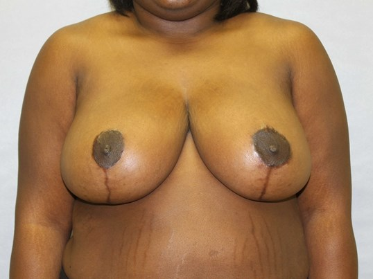 Raleigh breast reduction After