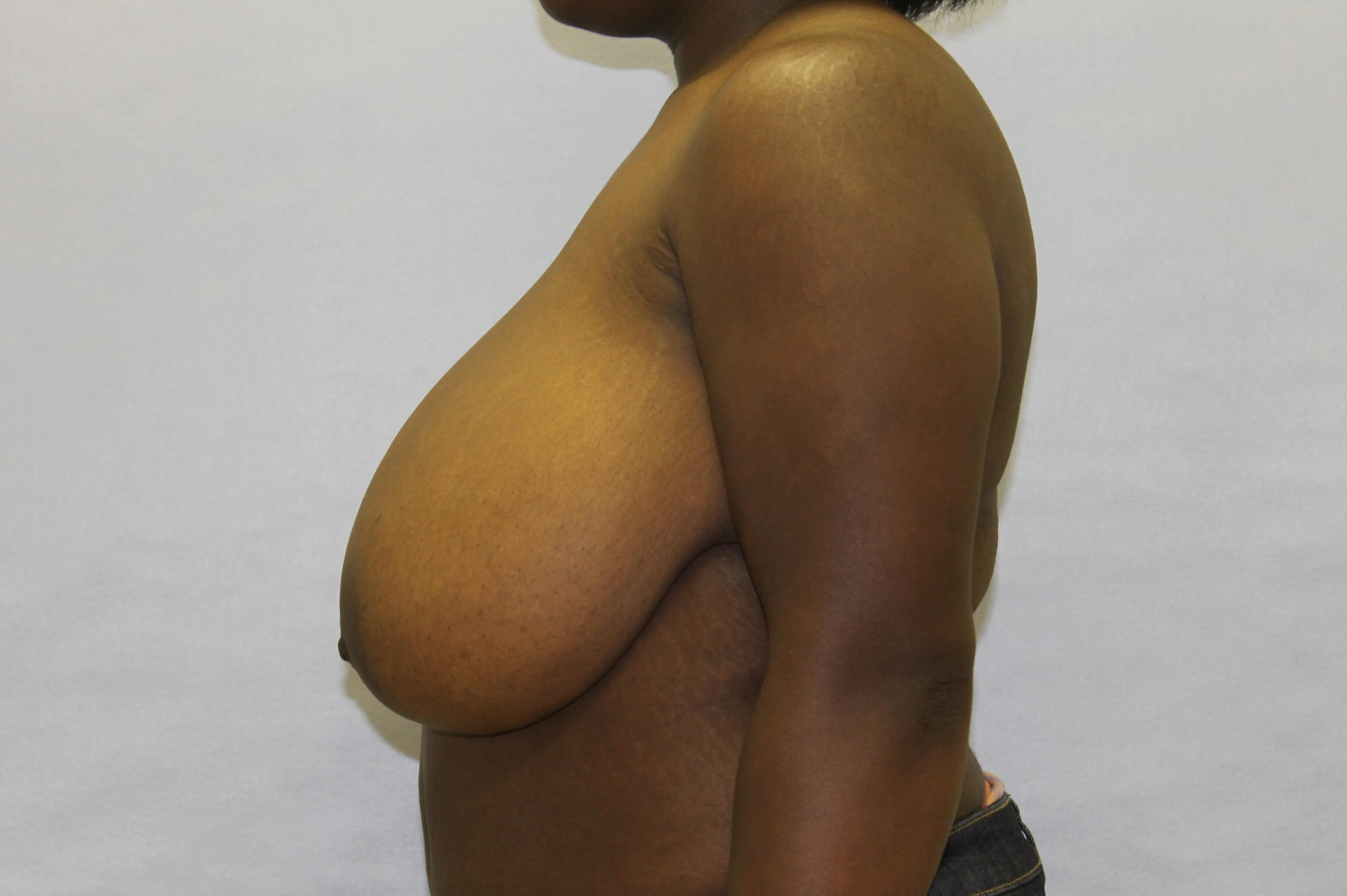 Raleigh breast reduction Before