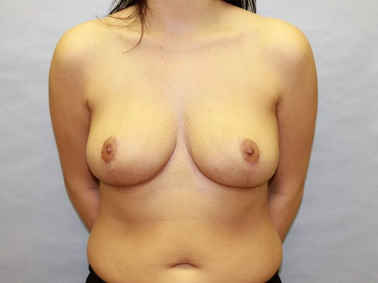 Breast Reduction Raleigh After