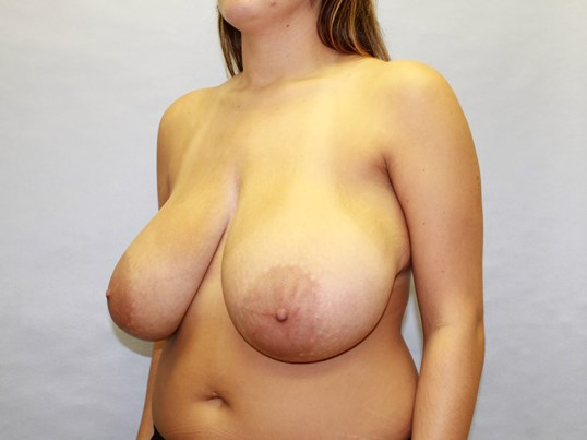 Breast Reduction Raleigh Before