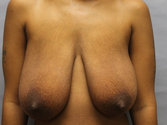 Goldsboro  breast reduction Before