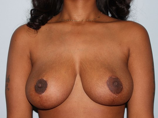 Goldsboro  breast reduction After