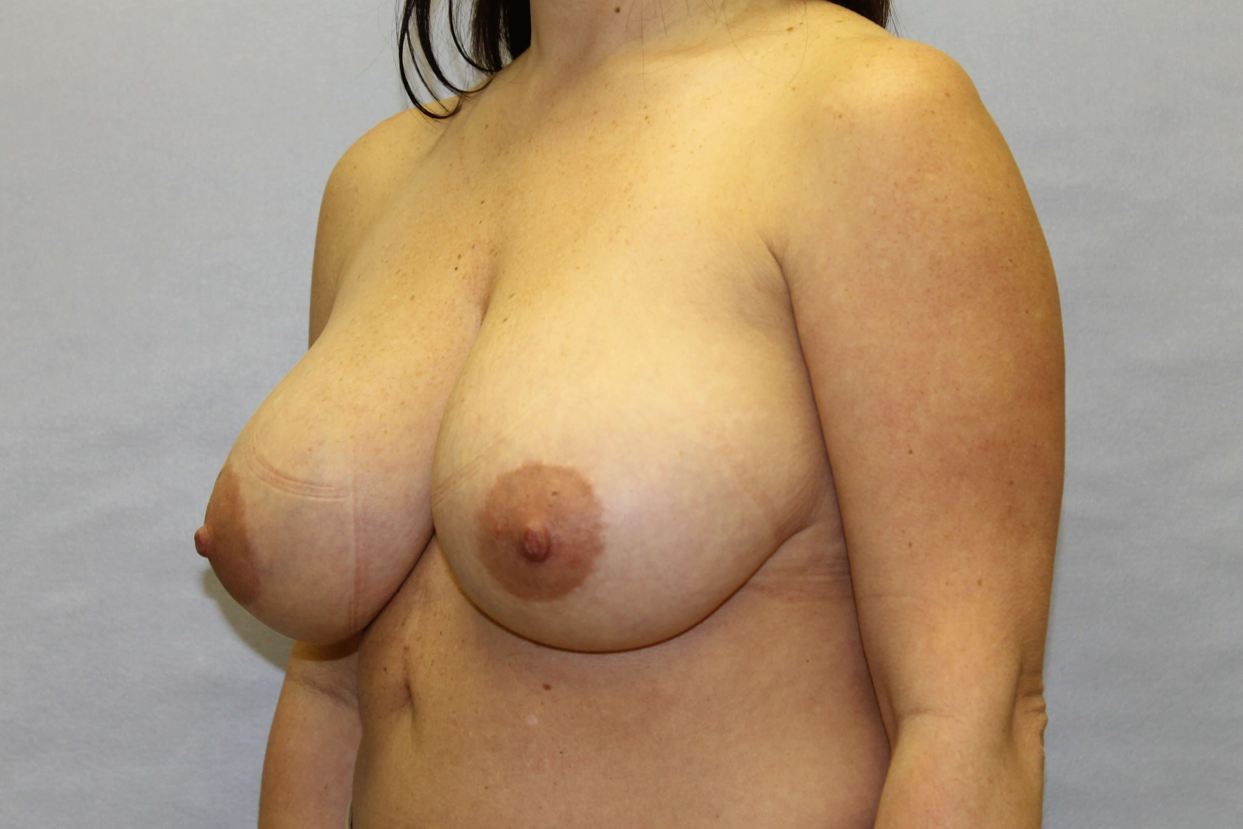 Vertical breast reduction Before