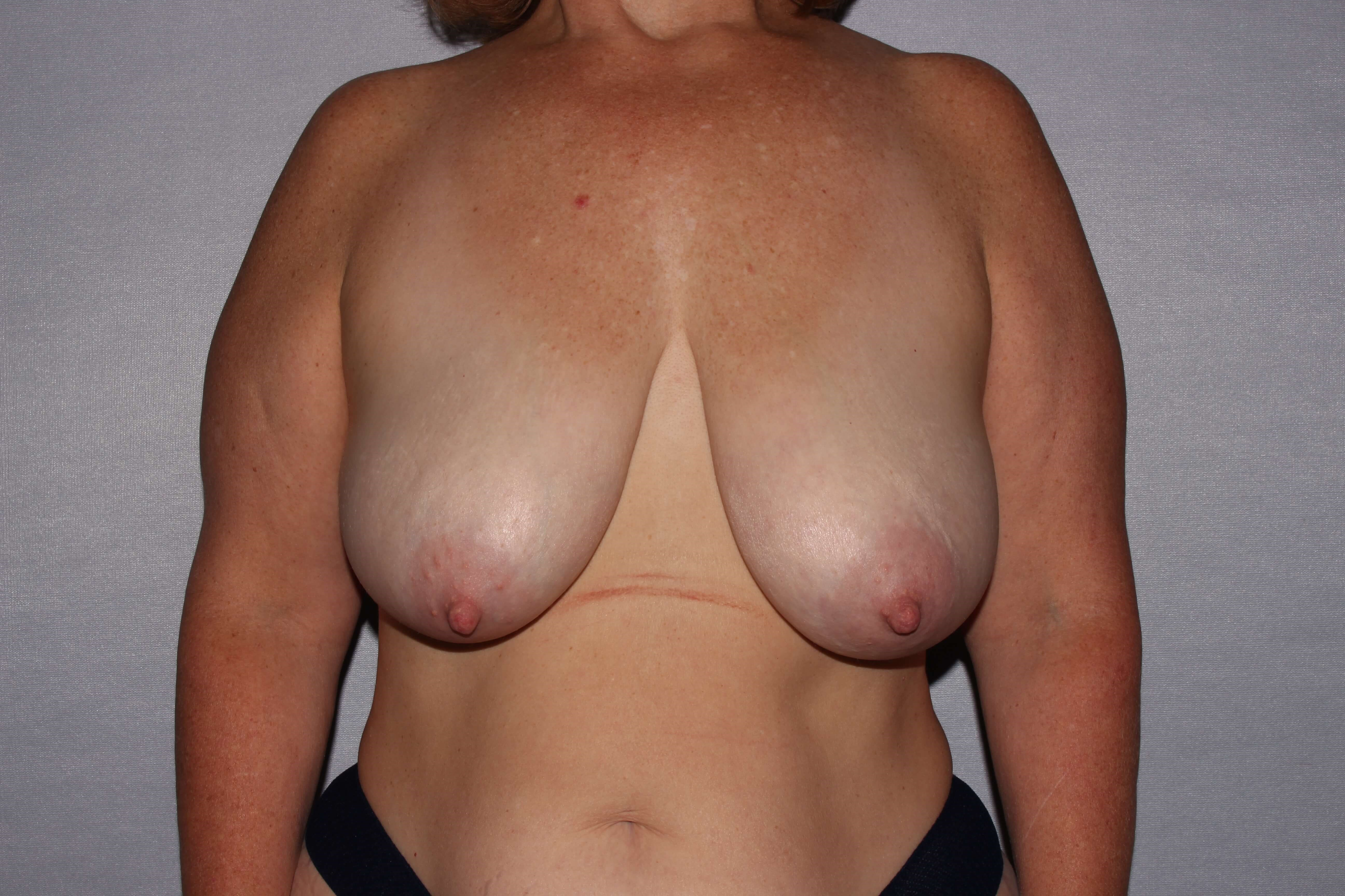 Mastopexy in Raleigh Before