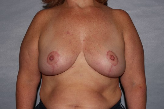 Mastopexy in Raleigh After