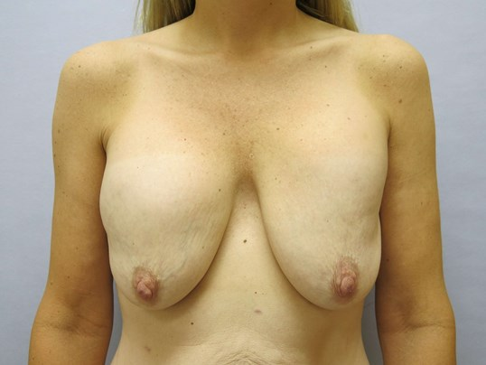 Raleigh Breast lift/Explant Before