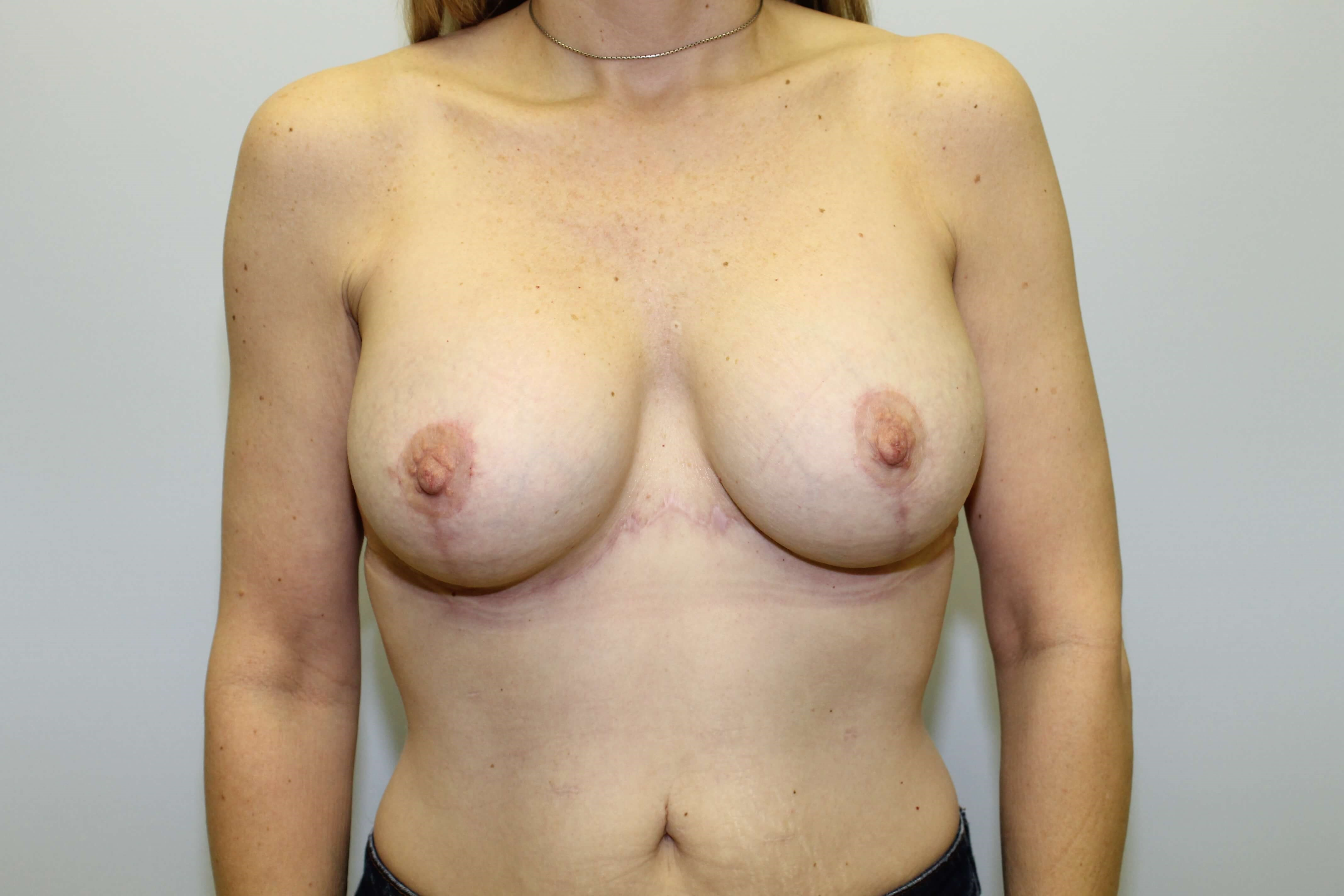 Raleigh Breast lift/Explant After