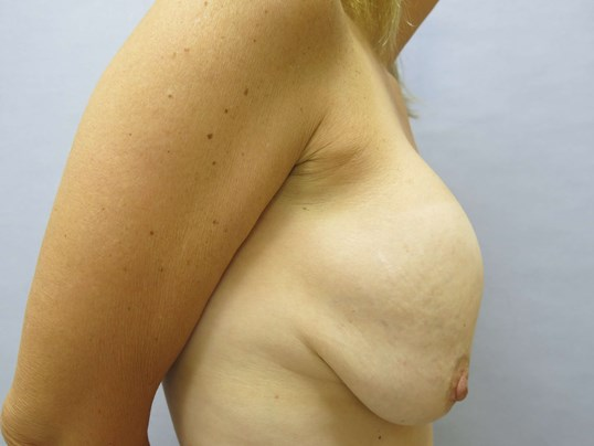 Raliegh breastlift/explant Before