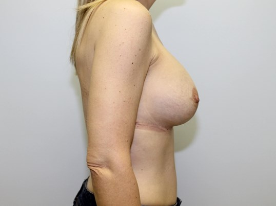 Raliegh breastlift/explant After