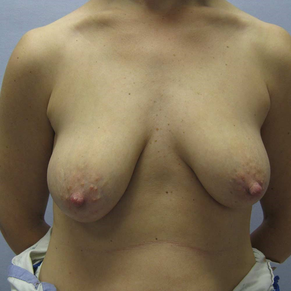 Augmentation Mastopexy Before