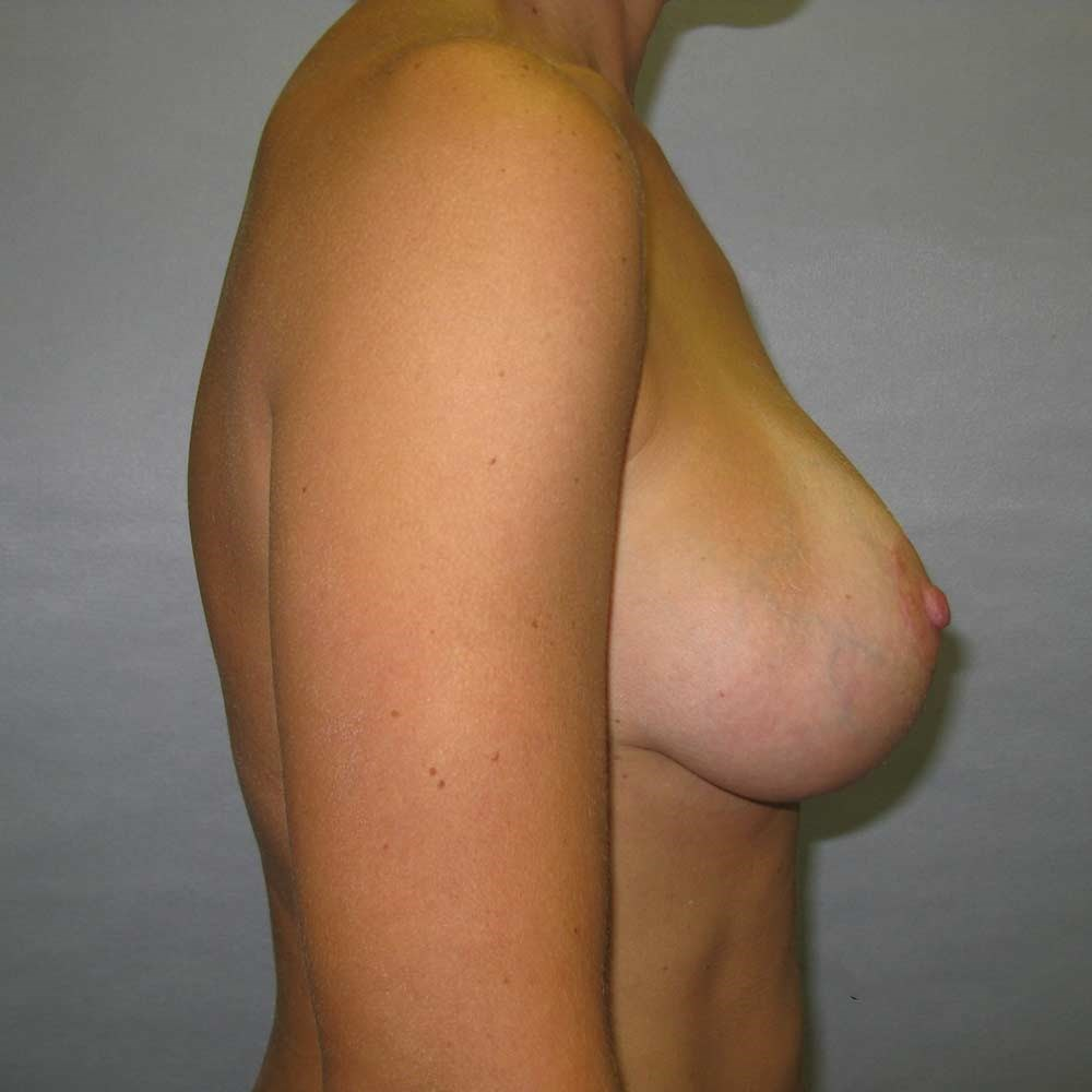 Augmentation Mastopexy After