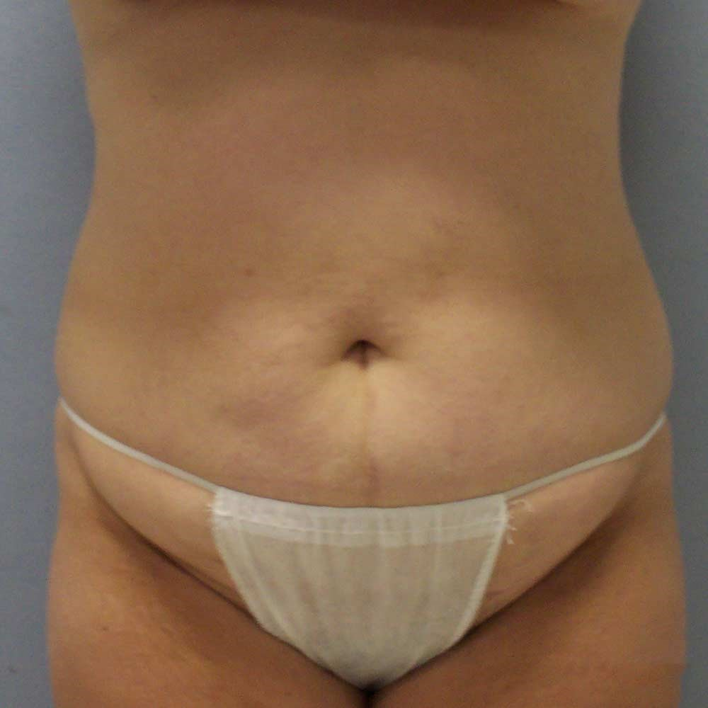 Clayton,NC tummy tuck Before