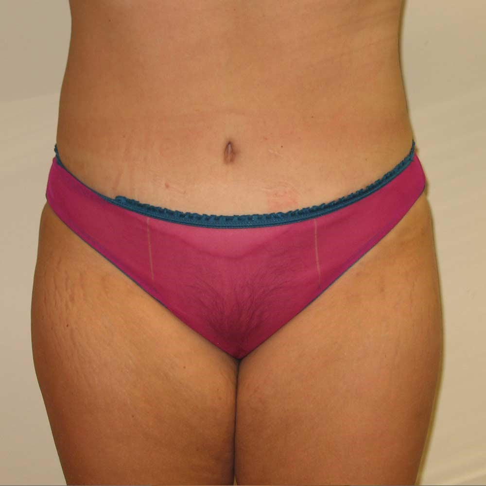 Clayton,NC tummy tuck After