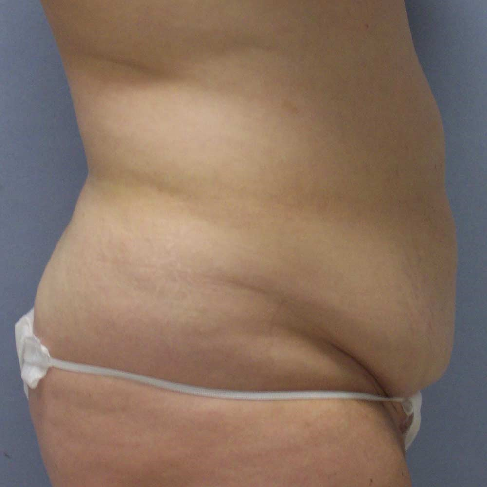 Clayton, NC tummy tuck Before