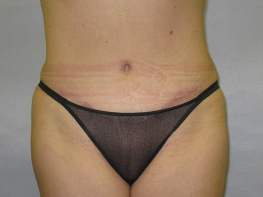 Tummy Tuck in Raleigh After