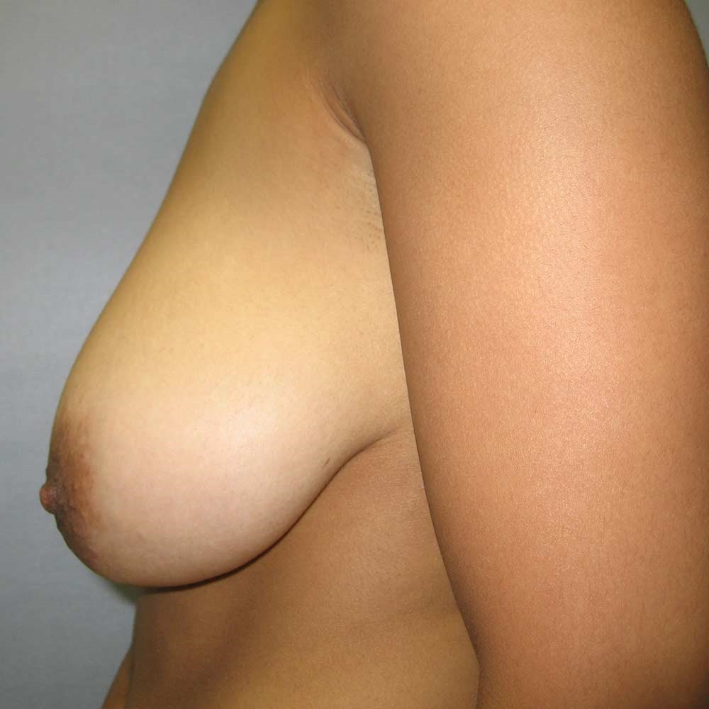 Small breast reduction Cary Before