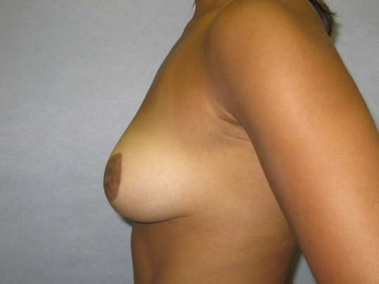 Small breast reduction Cary After