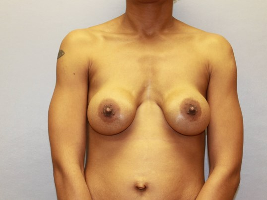 Revision Breastlift with gels Before