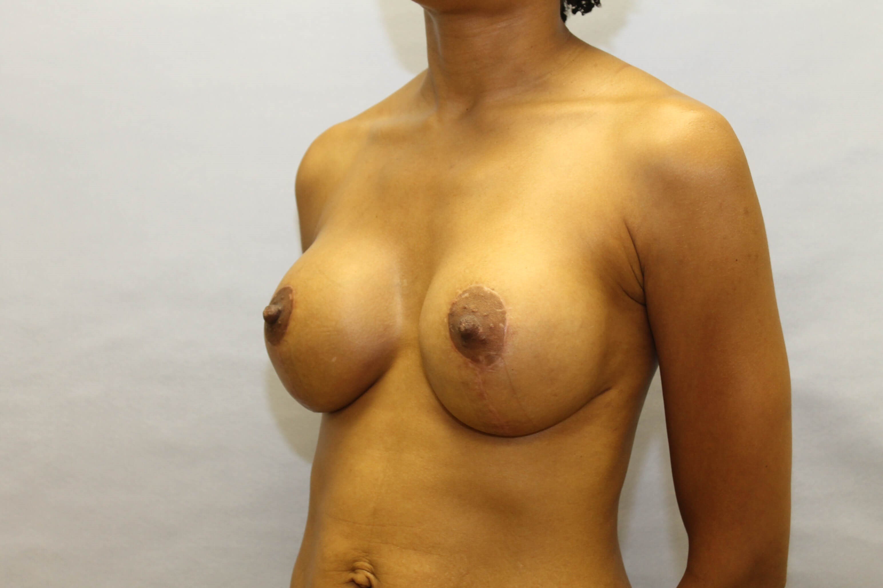 Revision Breastlift with gels After