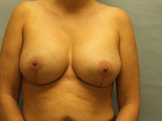 Breast Revision Raleigh After