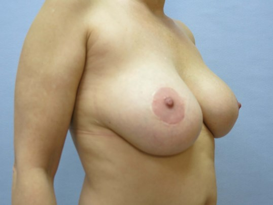 Breast Revision Raleigh Before