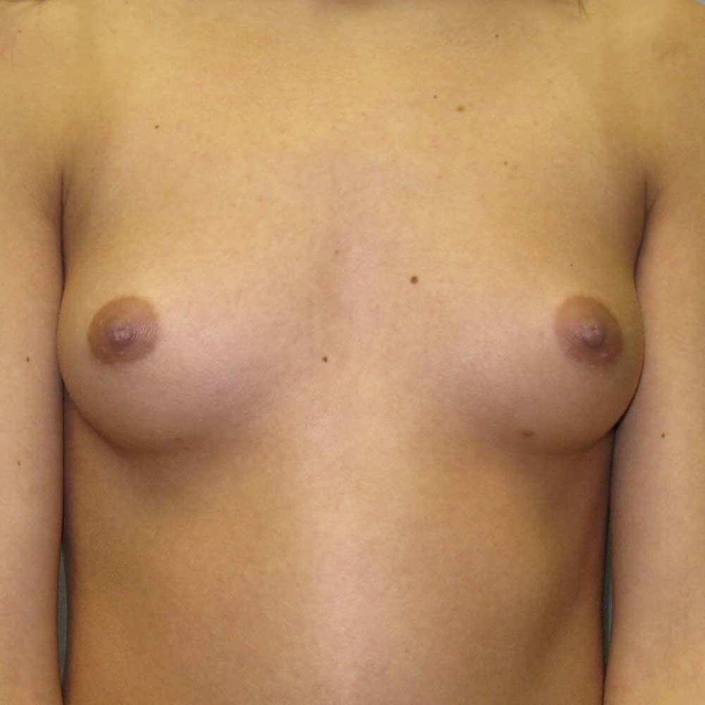 Breast Augment Raleigh Before
