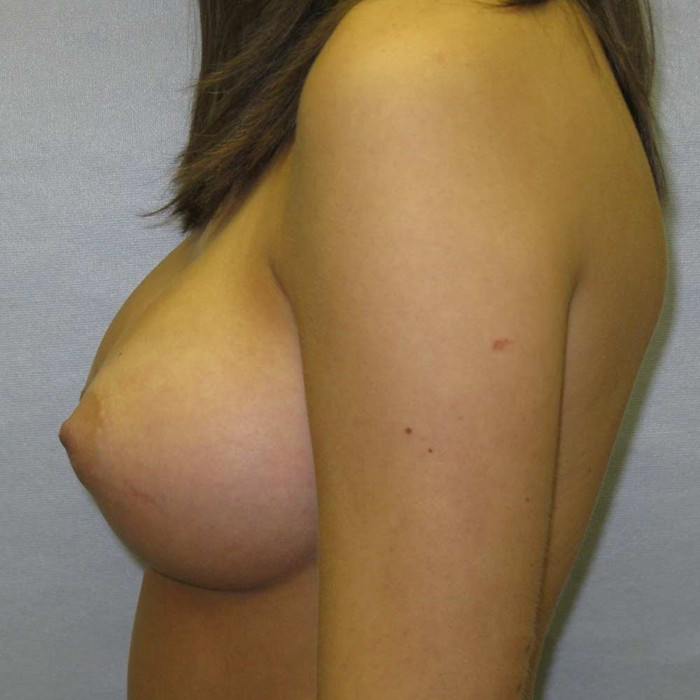 Breast augment Raleigh After