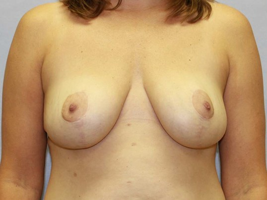 Breast Reduction Wake Forest After