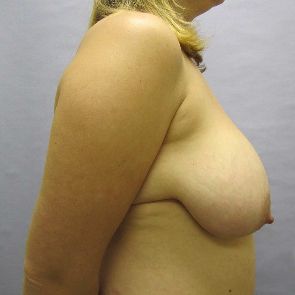 Breast Reduction Wake Forest Before
