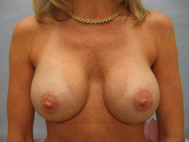 Saline breast implant Raleigh After