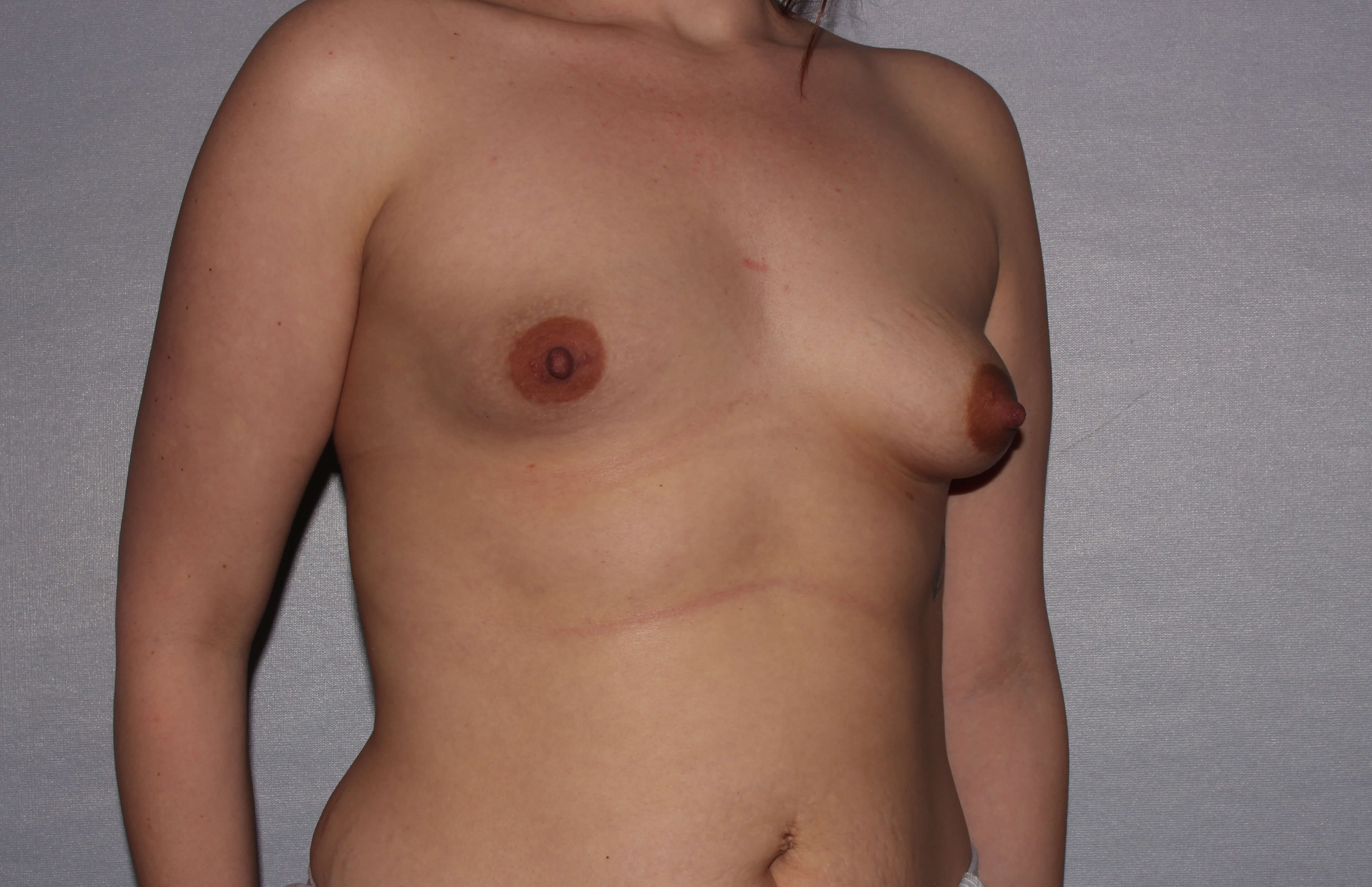 Asymmetric Breast correction Before