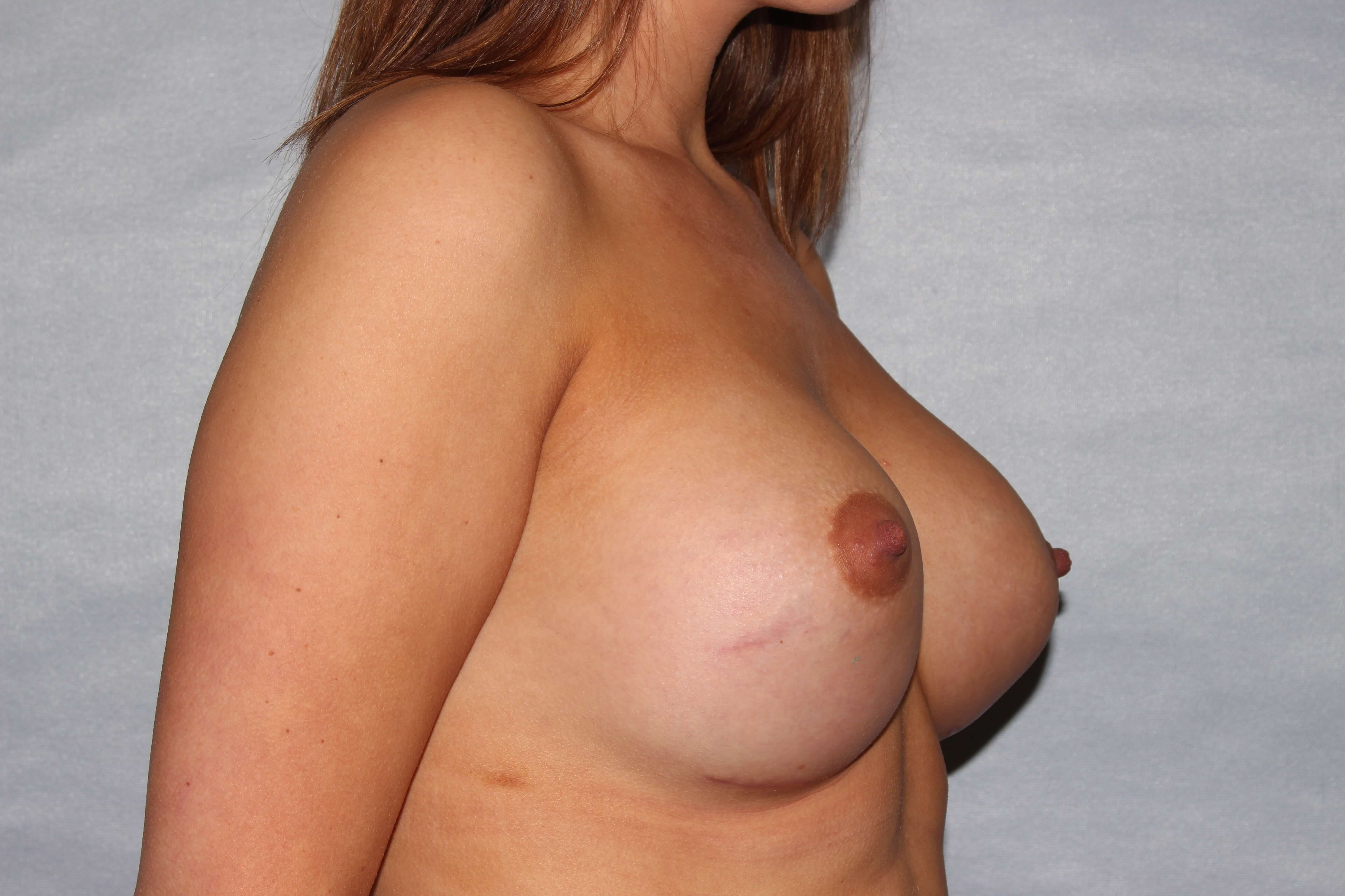 Asymmetric Breast correction After