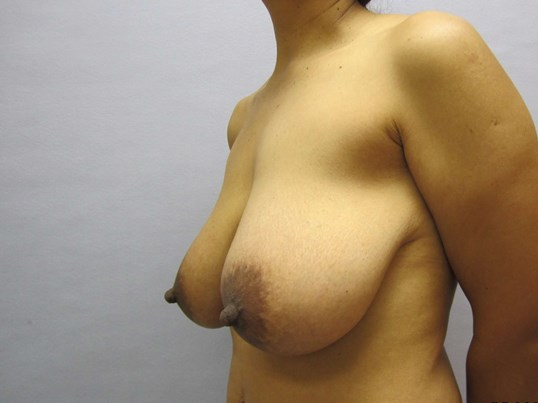 Breast Lift in Raleigh Before