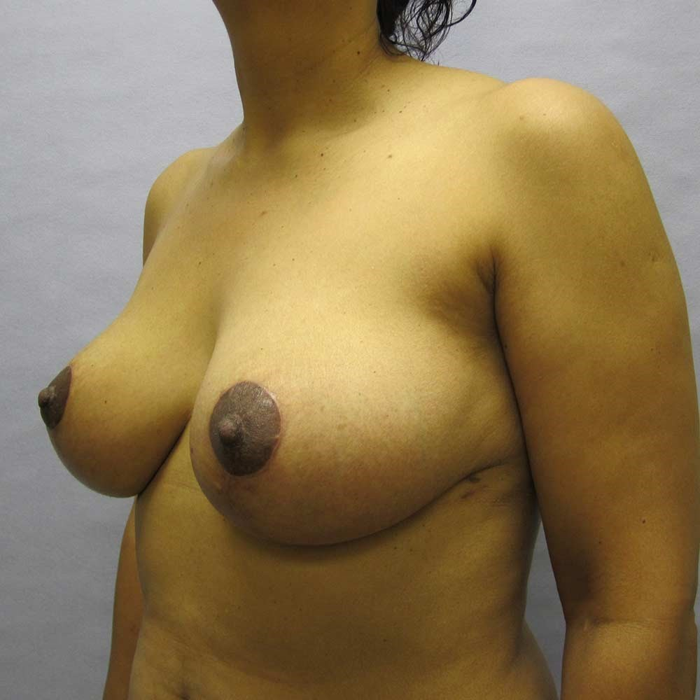 Breast Lift in Raleigh After