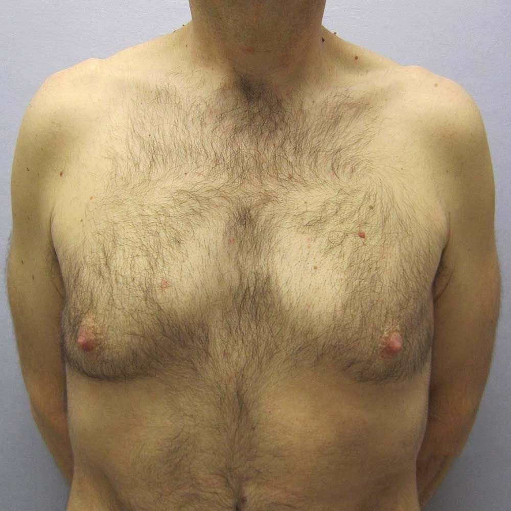 Gynecomastia  Fix in Raleigh Before