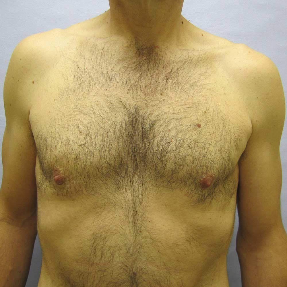 Gynecomastia  Fix in Raleigh After