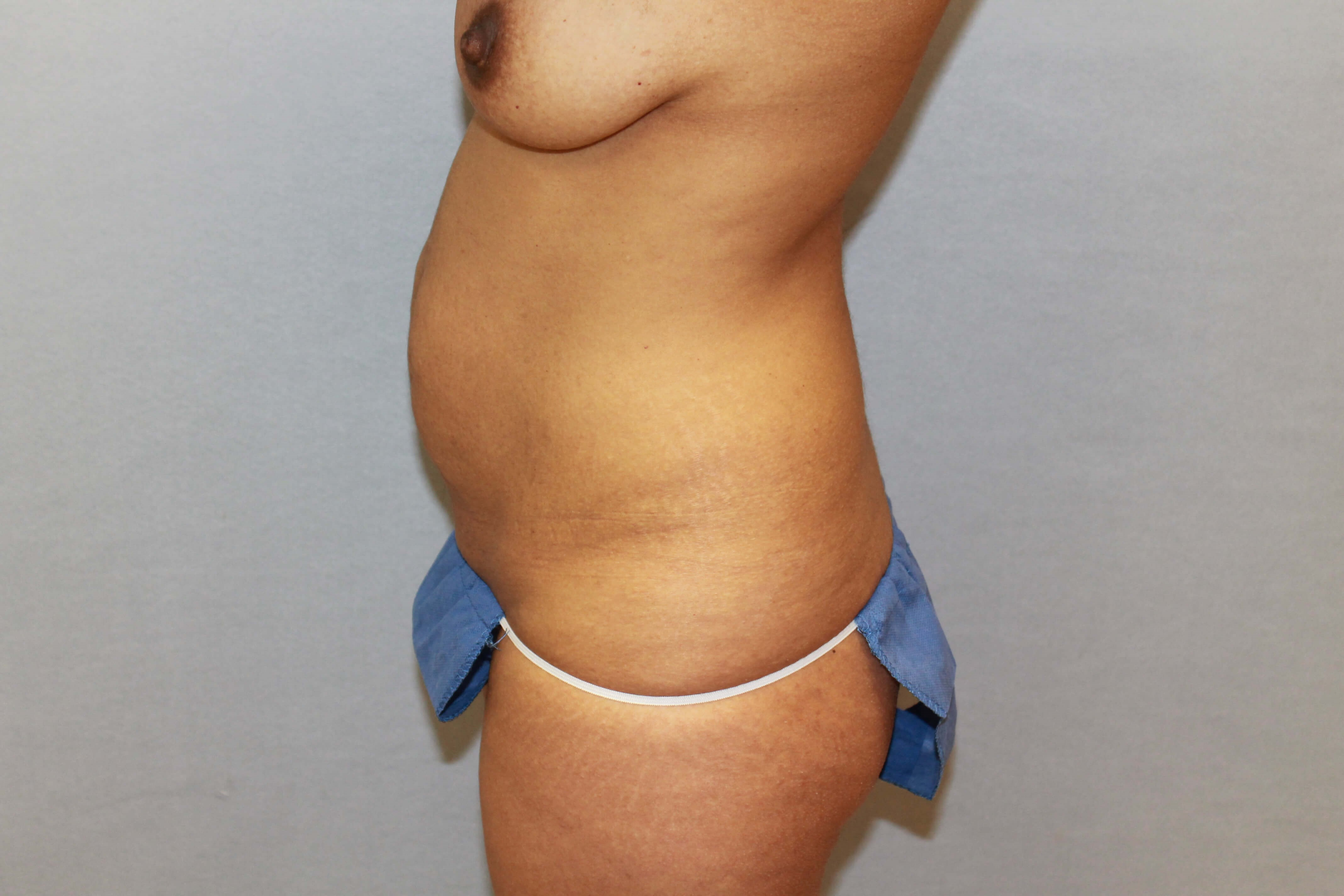 Tummy Tuck in  Raleigh, NC Before