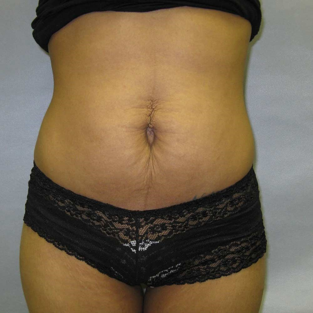 Fayetteville Tummy Tuck Before