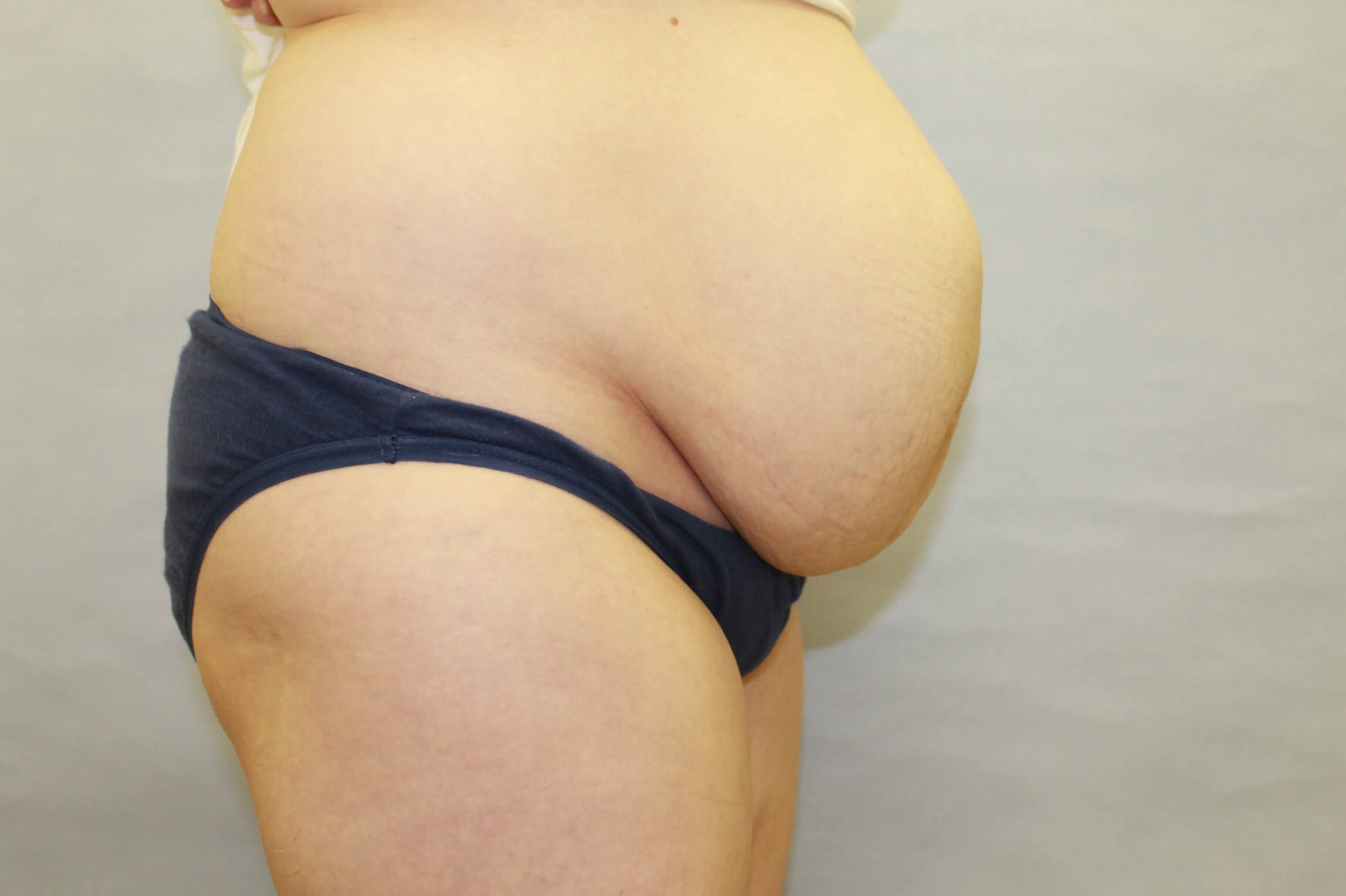 Diastasis Repair /Tummy tuck Before